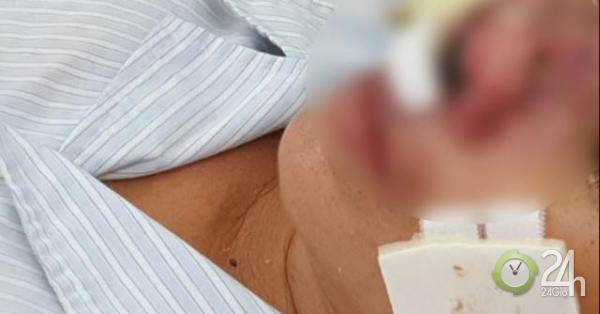 Tất tần tật về Whitmore, vi khuẩn ăn mòn cơ thể vừa quay trở lại Việt Nam-Sức khỏe đời sống