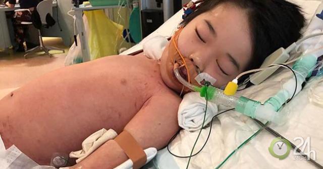 """Cậu bé 4 tuổi bị sốt và đau chân nhưng không ngờ lại bị mắc bệnh do """"vi khuẩn ăn thịt""""-Sức khỏe đời sống"""
