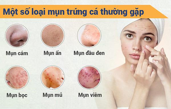 Cách trị mụn cực hiệu quả giúp bạn có làn da sáng mịn - 1