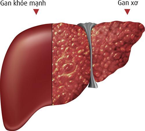 Đây mới là 6 món hủy hoại gan khiến gan của bạn 'hãi hùng' nhất, muốn gan khỏe mạnh cần tránh xa những thực phẩm này - 1