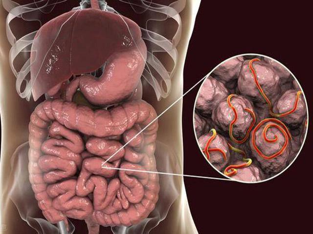 5 dấu hiệu tưởng vô hại nhưng lại là tín hiệu ung thư ruột phát triển - 1