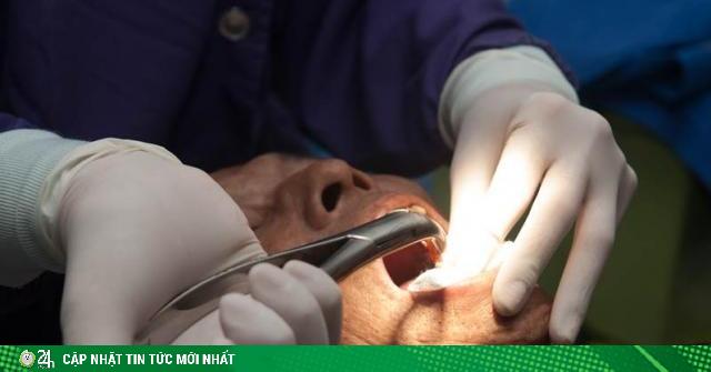 Tử vong vì nhổ răng khôn 10 ngày sau còn chảy máu