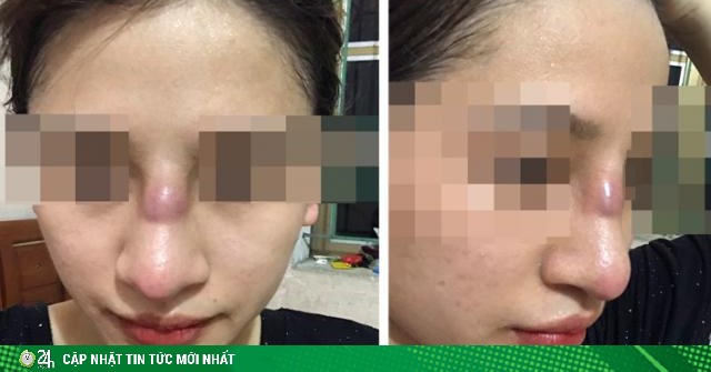 Mũi của cô gái trẻ lồi lõm, nhiễm trùng vì đặt sụn silicon tại spa