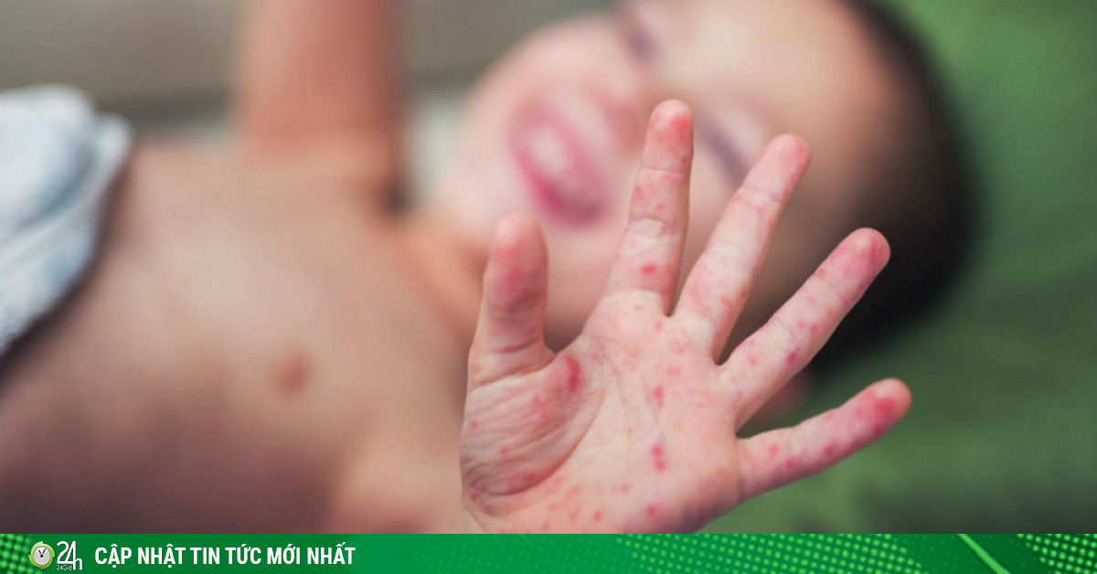 Cảnh báo: Gần 11.000 ca mắc tay chân miệng, bệnh nhi nhập viện tăng liên tục