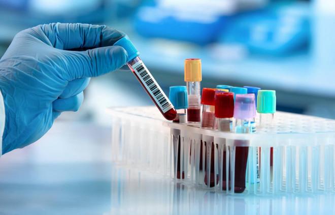 Phương pháp giá rẻ xác định 5 loại ung thư trước đến 4 năm - 1