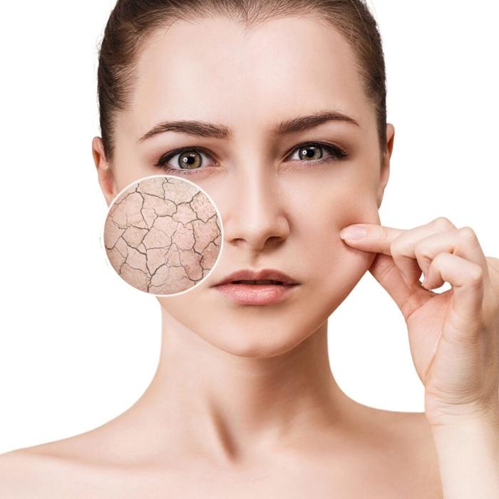 Nếu không tẩy tế bào chết, khi 40 tuổi da sẽ có 3 dấu hiệu sau - 2