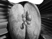 Búi trĩ sưng to bằng hạt đậu, bôi thứ này vào teo ngay, không tái lại!