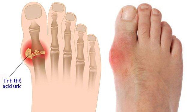 Bỏ qua dấu hiệu này ở chân có thể tử vong - 1