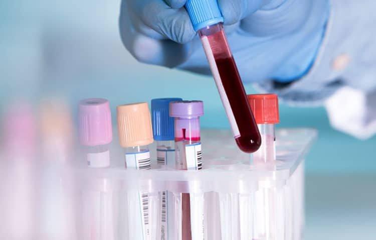Nồng độ oxy trong máu bao nhiêu là nguy hiểm? - 3
