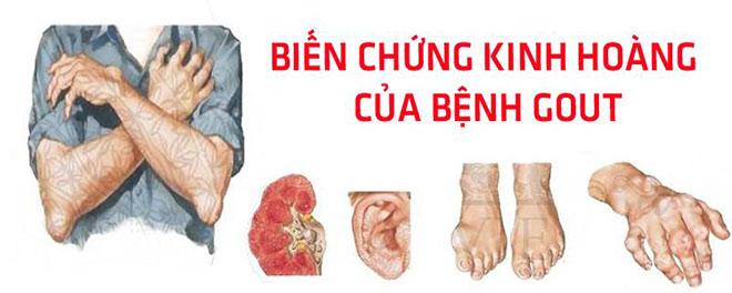 Giảm triệu chứng bệnh gout hiệu quả nhờ 4 Viên Gout Senudo mỗi ngày - 1