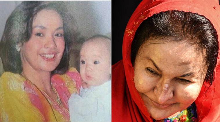 Gương mặt phu nhân cựu Thủ tướng Malaysia biến dạng gây sững sờ - 1