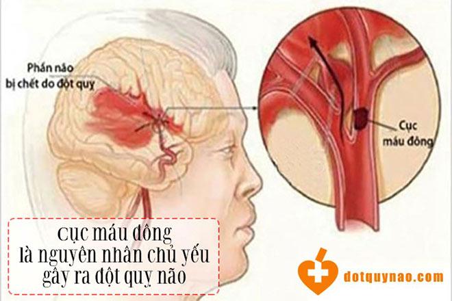 Nghiên cứu mới tiếp tục khẳng định vai trò của Nattospes với bệnh nhân nhồi máu não - 1