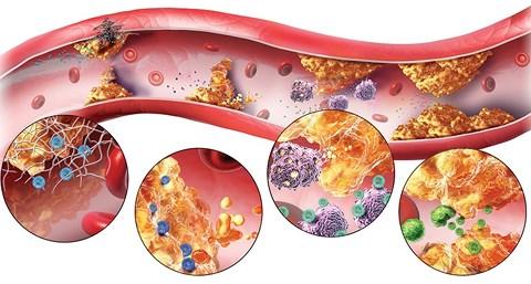 Hai sát thủ của tim mạch và cách ăn uống đúng để đẩy lùi căn bệnh này - 1