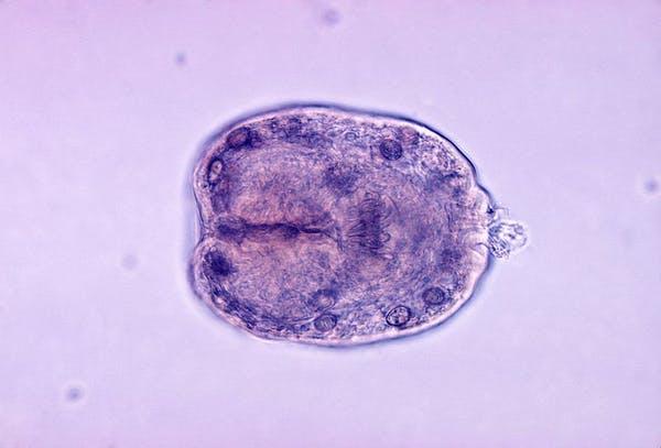 Những ký sinh trùng kinh dị nhất có thể ẩn nấp trong thức ăn của bạn - 3