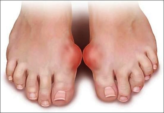 Dấu hiệu từ bàn chân cảnh báo bạn có thể đang mang
