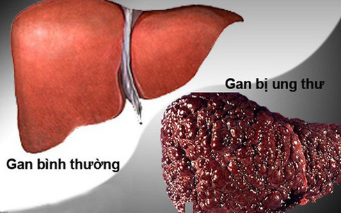 Vượt qua ung thư phổi, ung thư gan trở thành đại dịch - 1