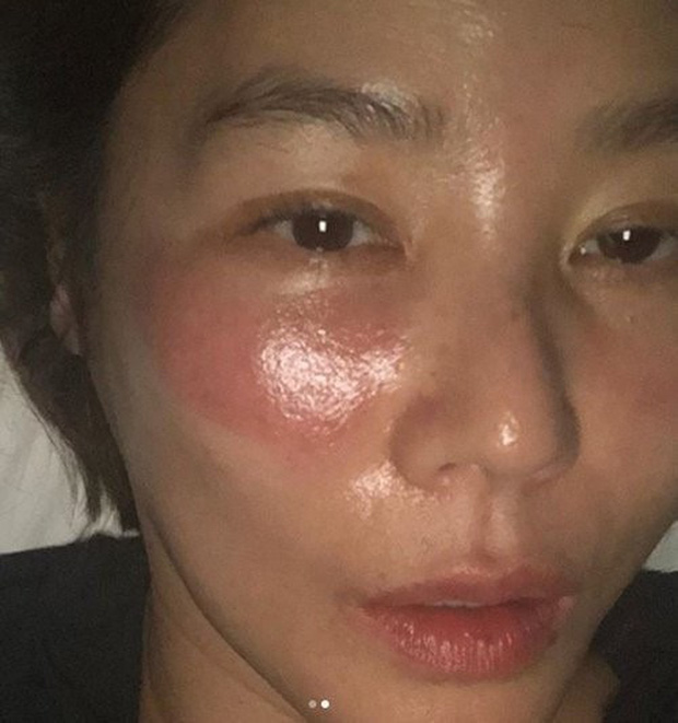 Đắp mặt nạ và ngủ quên, hoa hậu Hàn Quốc mặt sưng như quái vật - 1