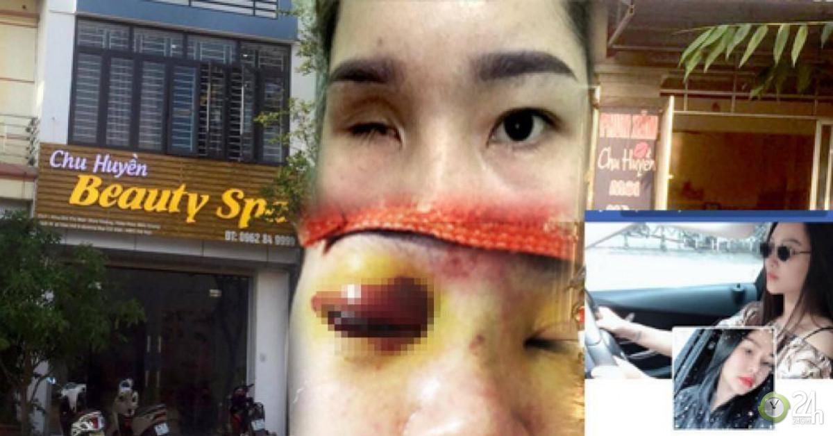 Thẩm mỹ viện Chu Huyền lên tiếng vụ nâng mũi khiến khách mù mắt - Tin tức 24h