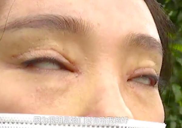 Cô gái chi bộn tiền cắt mí, hậu quả là mắt như cửa không cánh - 1