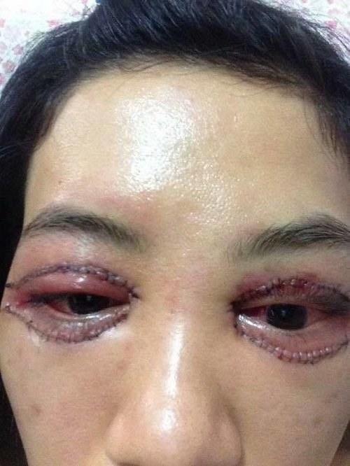Cô gái chi bộn tiền cắt mí, hậu quả là mắt như cửa không cánh - 2