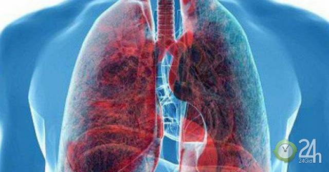 15 dấu hiệu những bệnh ung thư nguy hiểm nhất thường bị quý ông coi nhẹ