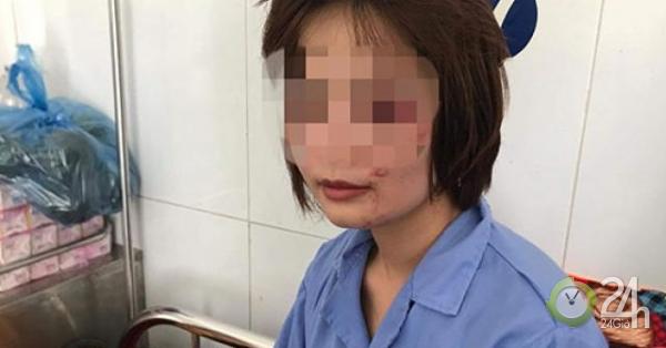 Nữ nhân viên xe buýt kể phút kinh hoàng bị 4 thanh niên đánh bầm dập trong ngày 20/10 - Tin tức 24h
