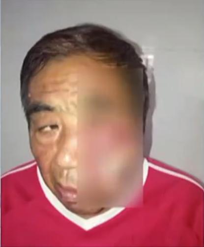 Gãi vết muỗi cắn, người đàn ông bị nhiễm trùng huyết suýt chết - 1