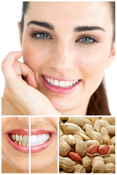 20 Cách làm trắng răng nhanh nhất an toàn hiệu quả tại nhà - 17