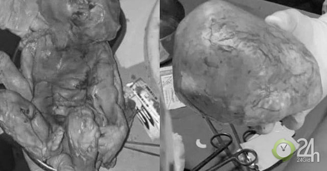 Người phụ nữ than phiền bị đau bụng, bác sĩ phát hiện ra thai đã chết lưu 15 năm