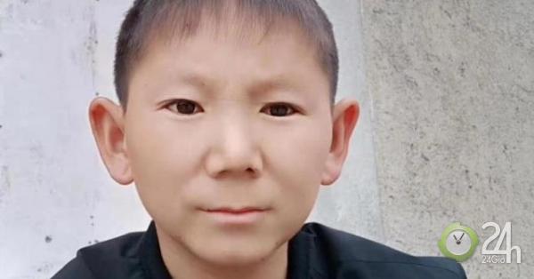 Chấn thương đầu khiến người đàn ông 34 tuổi trông như một đứa trẻ