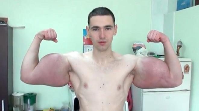 Lực sĩ tay to nhất thế giới gặp họa chết người: Phải cắt bỏ bắp tay - 1