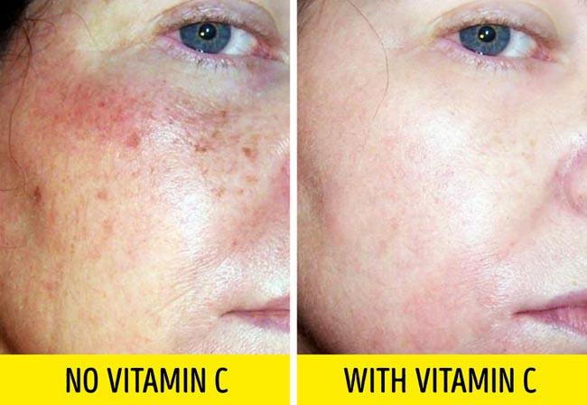 5 loại mỹ phẩm giúp giảm nếp nhăn, làm căng da mặt cực hiệu quả - 5