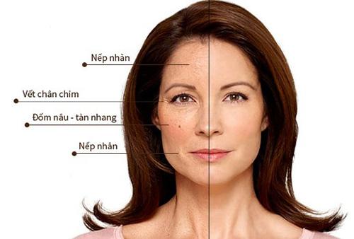 """Những dấu hiệu lão hóa trên da chứng tỏ bạn đã """"có tuổi"""" - 1"""