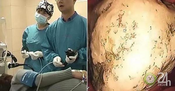Sỏi 5 cm án ngữ trong bụng, bệnh nhân sốc khi biết cách nó được tạo thành