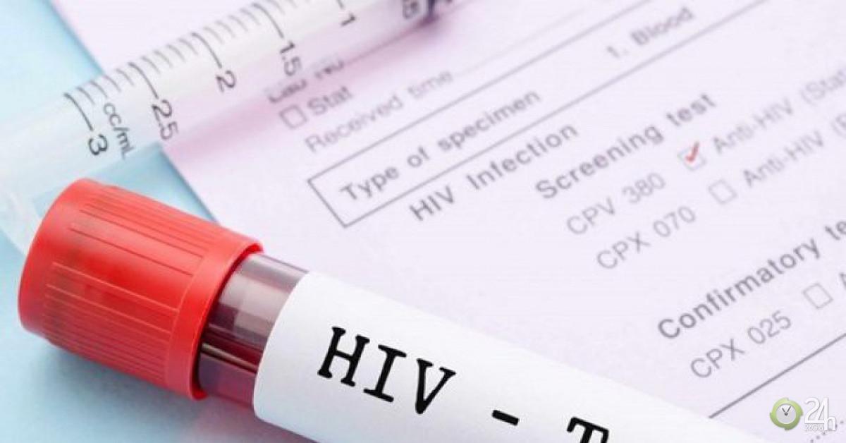 Xét nghiệm HIV cách nào chính xác nhất?-Sức khỏe đời sống