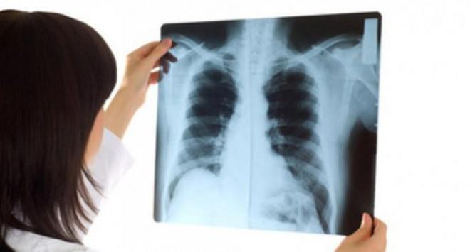 Đừng coi thường khi đau lưng, bởi có thể là dấu hiệu của ung thư phổi - 4