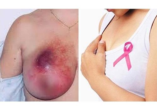 Nhiều phụ nữ trẻ đã mắc ung thư vú, bác sĩ chỉ rõ dấu hiệu nhận biết - 1