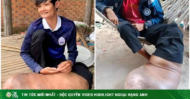 Chỉ một vết muỗi đốt, chân người đàn ông sưng to bằng một con lợn