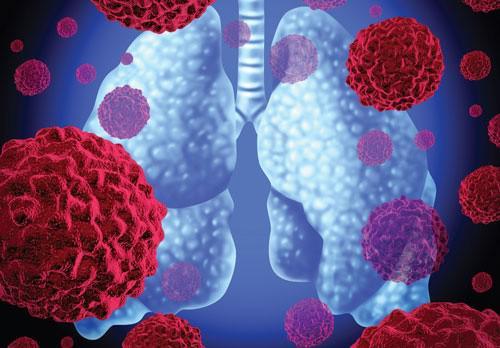 Anh chế ra vắc-xin trị 2 loại ung thư gây chết người nhiều nhất thế giới - 1