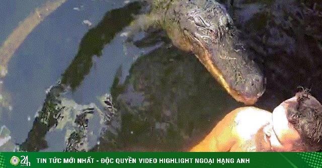 Bơi cùng bạn thân là cá sấu rồi bị ngoạm trúng vai, người đàn ông lên bờ nói điều sốc
