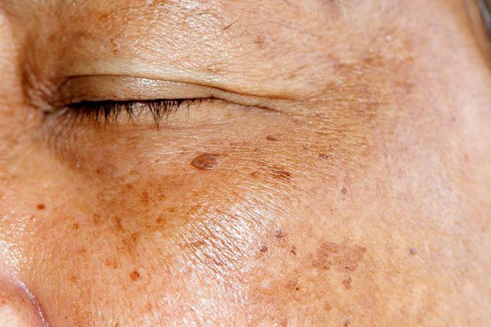 Bất kể là nam hay nữ, nếu thấy 3 dấu hiệu này trên mặt, có thể gan bạn đang bị xơ cứng - 3