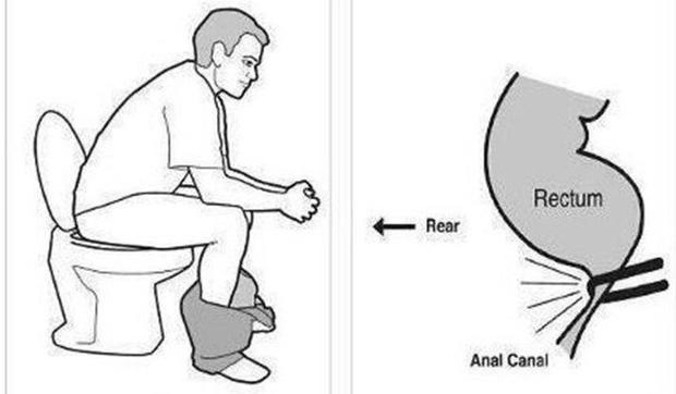 Ung thư ruột chẳng mấy mà tìm đến nếu bạn vẫn giữ thói quen đi vệ sinh này - 2