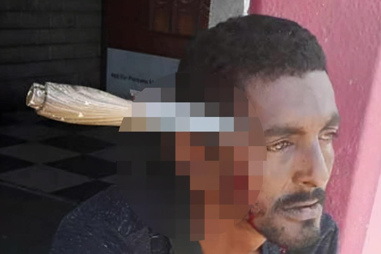 Người đàn ông bị bắn 7 phát đạn, 3 năm sau bị dao đâm xuyên đầu - 1